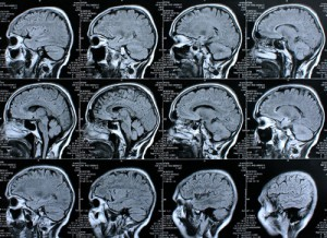Gehirndoping
