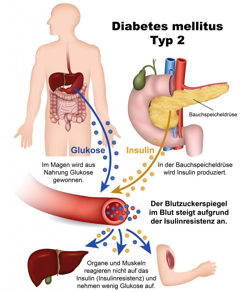 So entsteht Diabetes Typ2