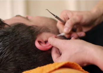 Beim Reizdarm erfolgreich: Akupunktur