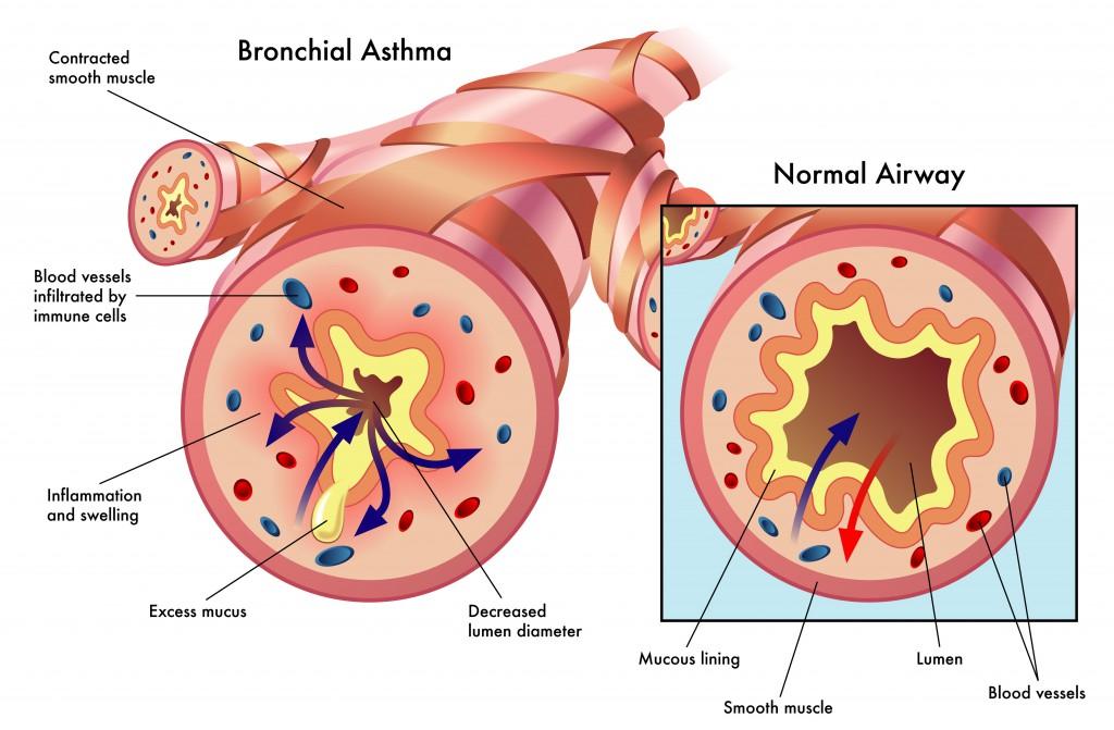 Was passiert bei Asthma?