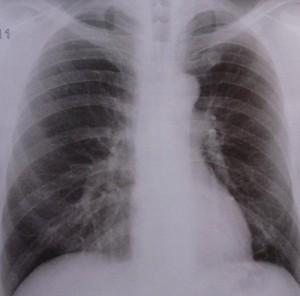 Asthma-erkennen