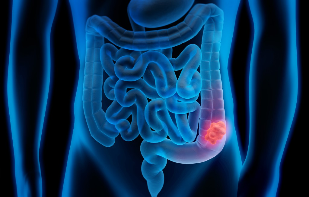 Darmpolypen können Unterbauchbeschwerden verursachen.