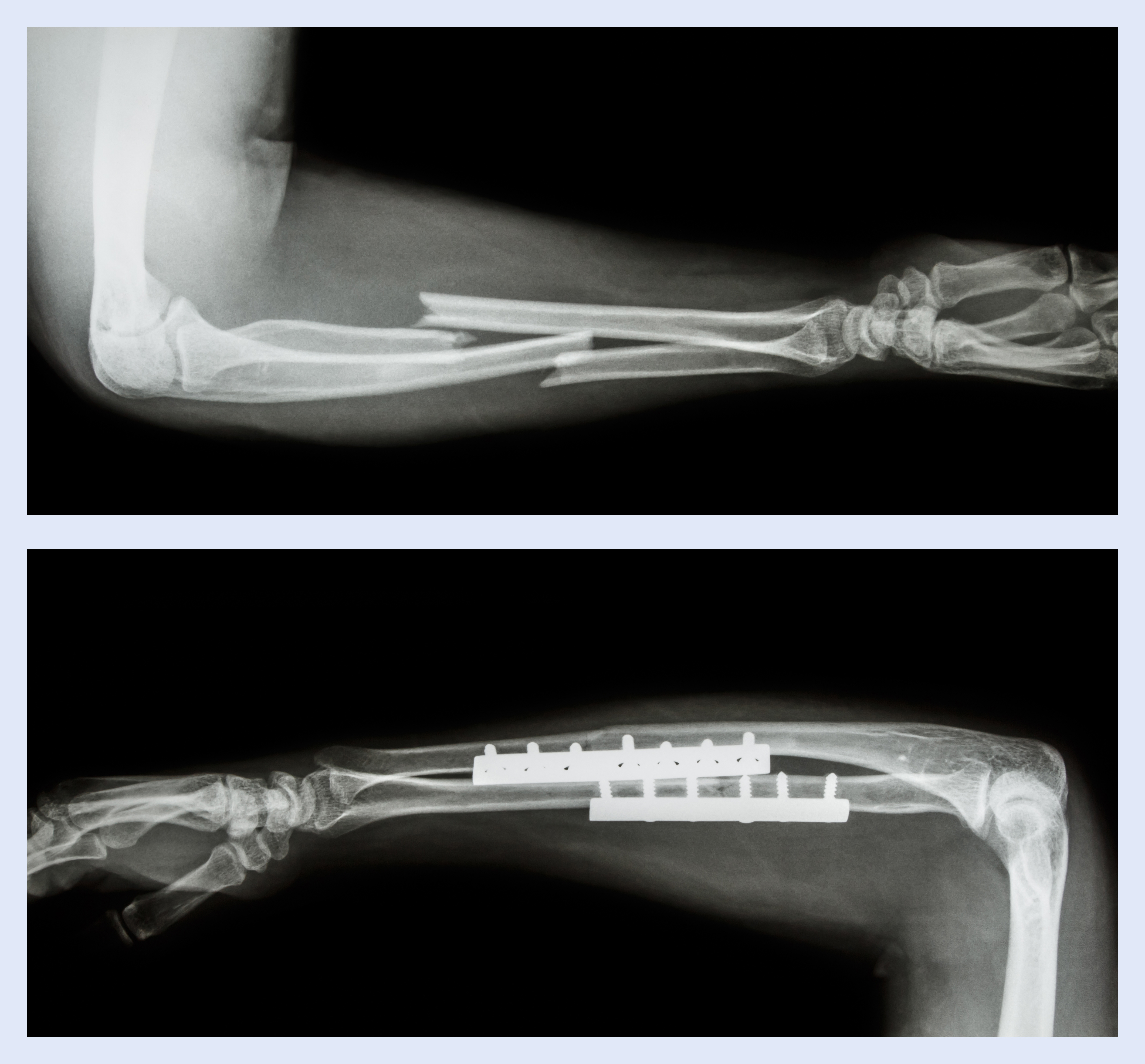 Fracture ulnar and radius (Forearm bone) and surgery
