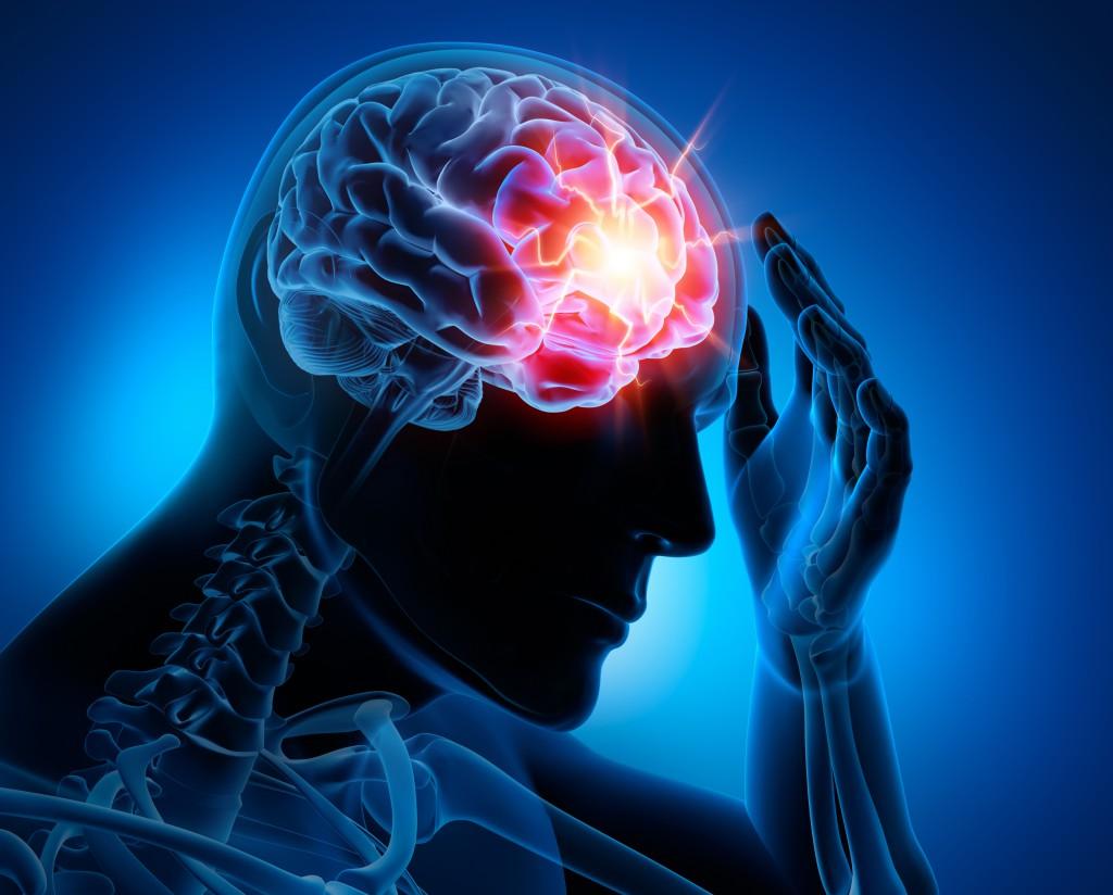 Eine neue Therapie könnte das Leiden von Migräne-Patienten mindern. (Bild: psdesign1/fotolia)