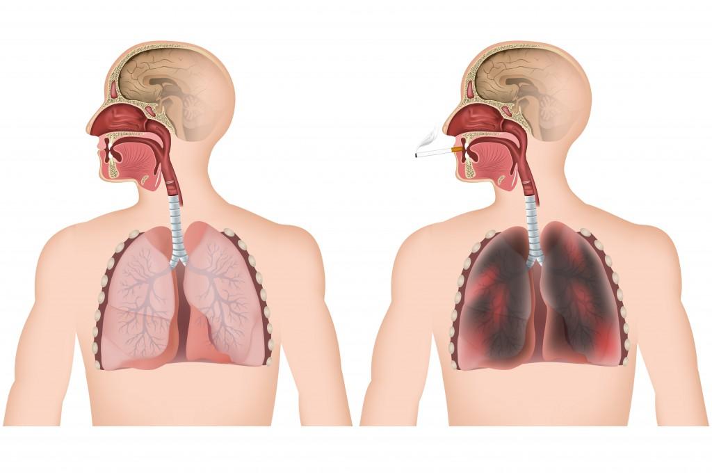 So verändert sich die Lunge durch das Rauchen. (Bild: bilderzwerg/fotolia)