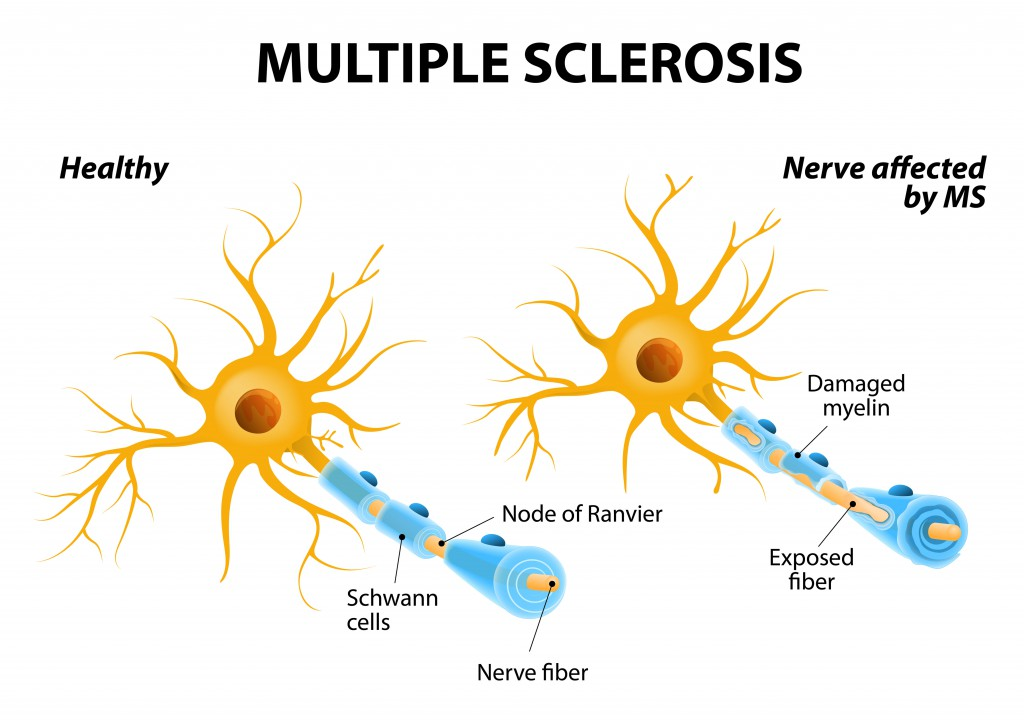 Multiple sclerosis or MS. autoimmune disease. the nerves of the brain and spinal cord are damaged by one's own immune system that affects the brain and spinal cord resulting in loss of muscle control, vision and balance.
