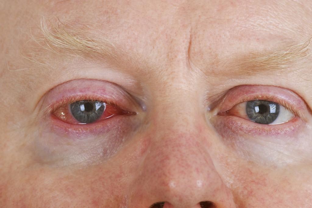 Mann imt rotem Auge