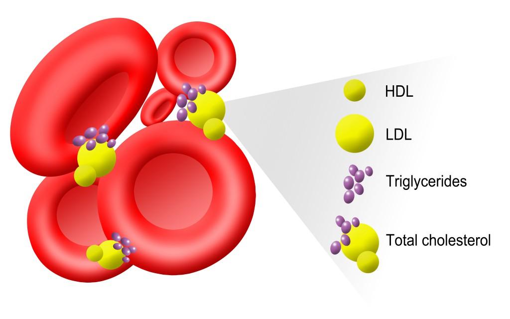HDL Cholesterin ist nicht immer das Gleiche. Es kommt auf die Qualität an. Bild: Sophia Winters/fotolia