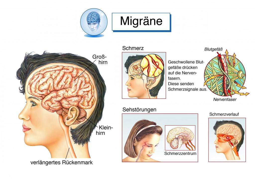 Häufig steckt hinter Stirnschmerzen eine Migräne. (Henrie/fotolia)