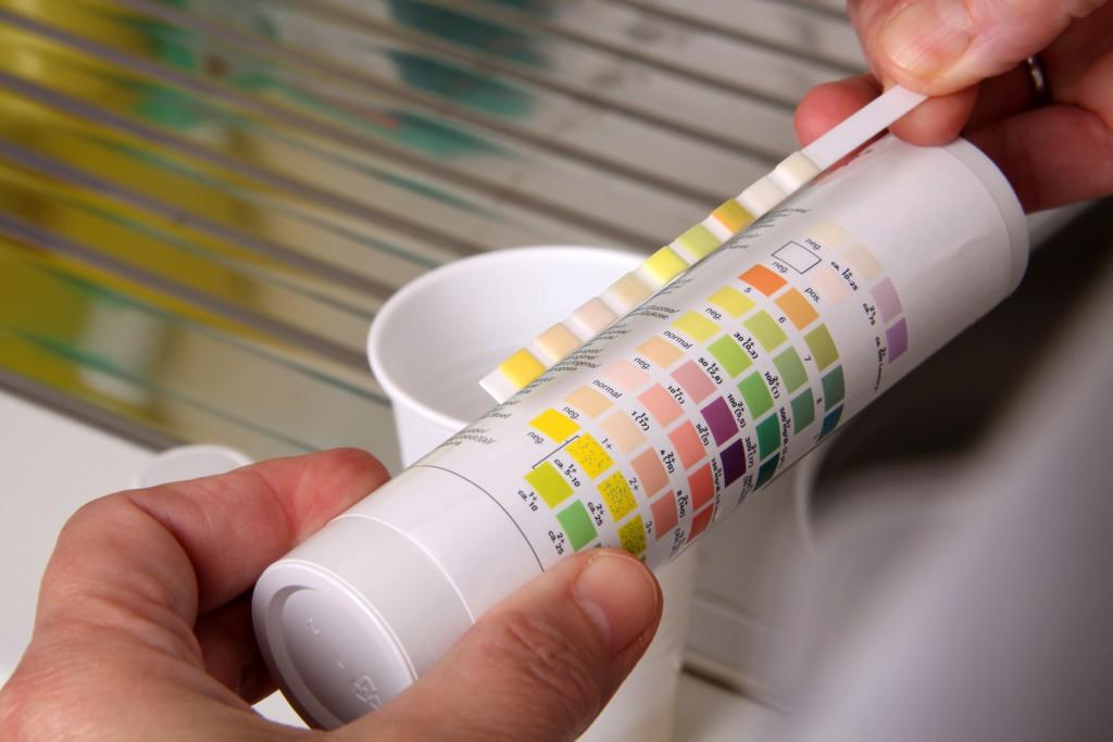 Künstliche Bakterien erkennen Krebs. (Bild: Klaus Eppele/fotolia)