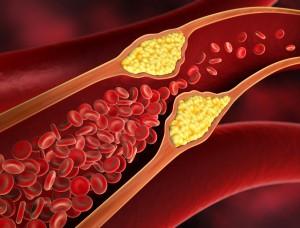 Gefäßverengungen können eine Ursache für Bluthochdruck sein.