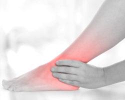 Schmerzen der Achillessehne treten oftmals nach starker Belastung auf und können eine erheblihe Beeinträchtigung im Alltag darstellen. (Bidl: SENTELLO/fotolia.com)
