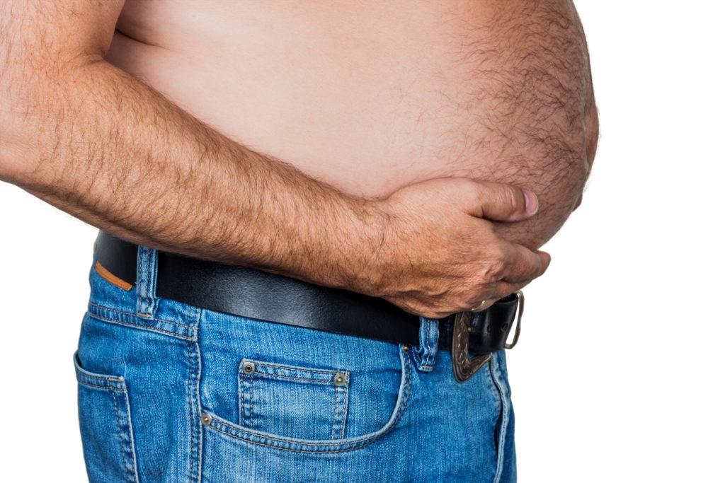 Mann mit Übergewicht. Symbolfoto für Bierbauch, erfolglose Diäten und falsche Ernährung