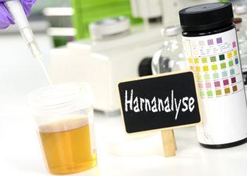 Oft werden bei einem Harnwegsinfekt fälschlischerweise Bakterien als Ursache vermutet, obwohl Chlamydien oder andere Erreger hinter den Beschwerden stecken. (Bild: Gerhard Seybert/fotolia.com)