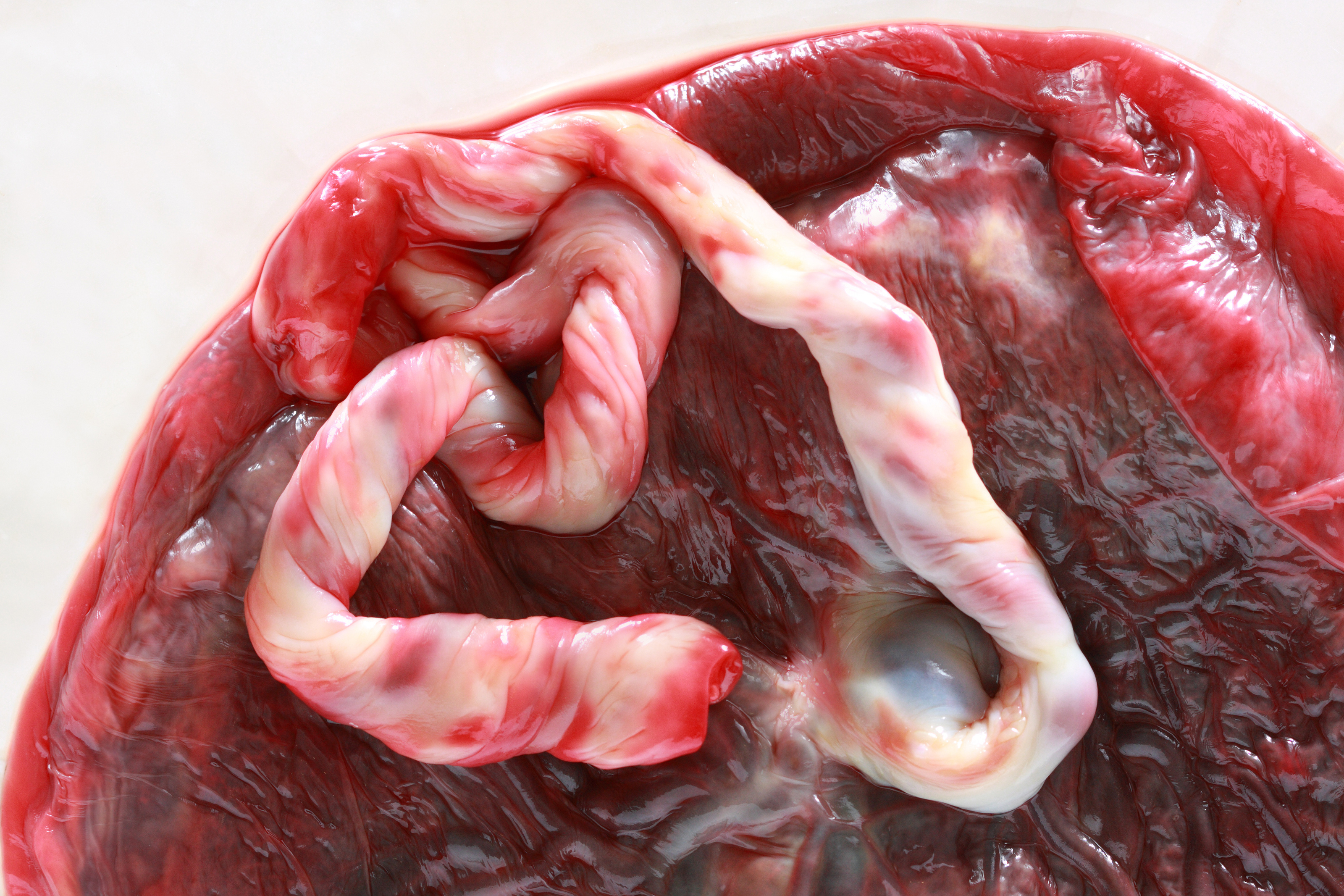 Close up of a fresh human placenta