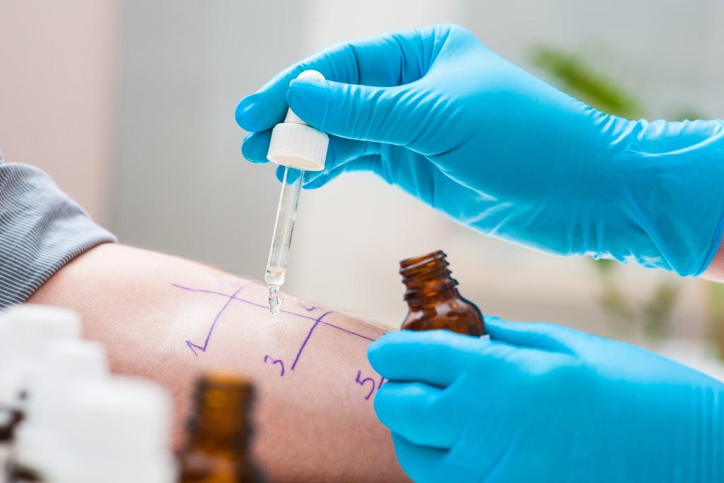 Ein Test bei einem spezialisiertem Hausarzt kann Allergie anzeigen. Bild: Alexander Raths-fotolia