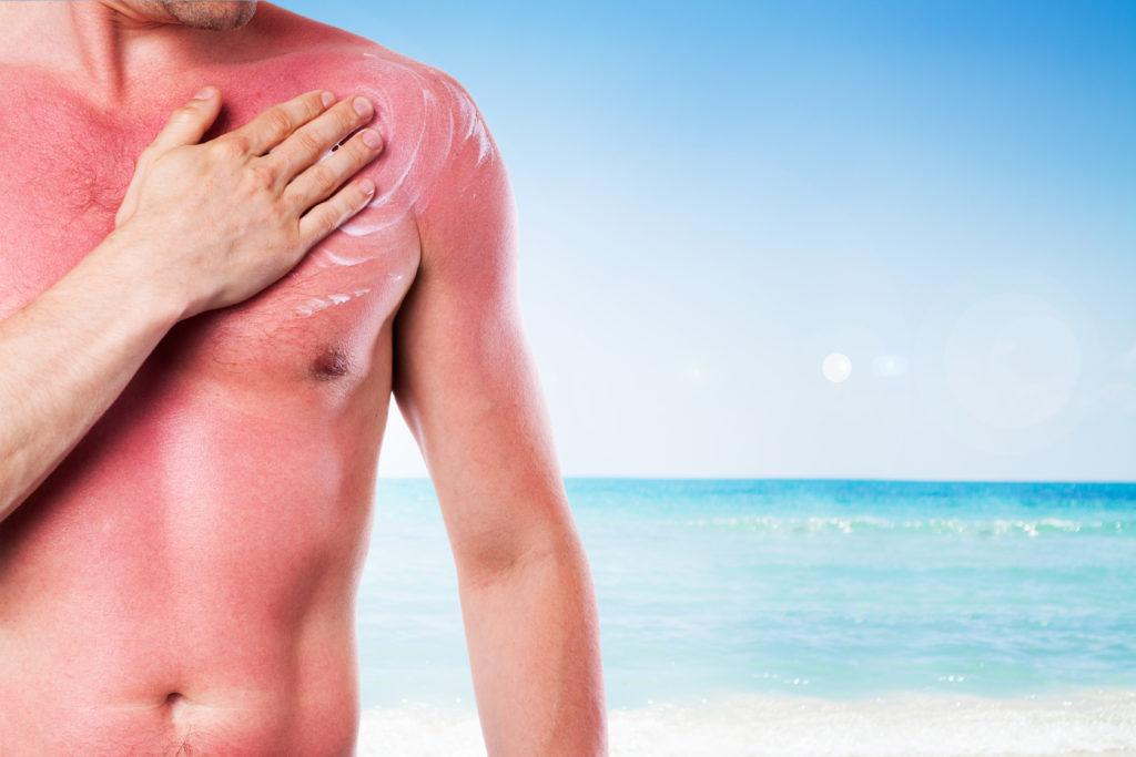Ein Sonnenbrand wird durch übermäßige UV-Strahlung verursacht. (Bild: Rostislav Sedlacek/fotolia)