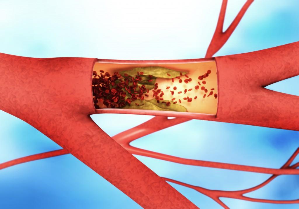 Gesundheitsgefahr durch Transfette. Bild: MAN AT MOUSE - Fotolia