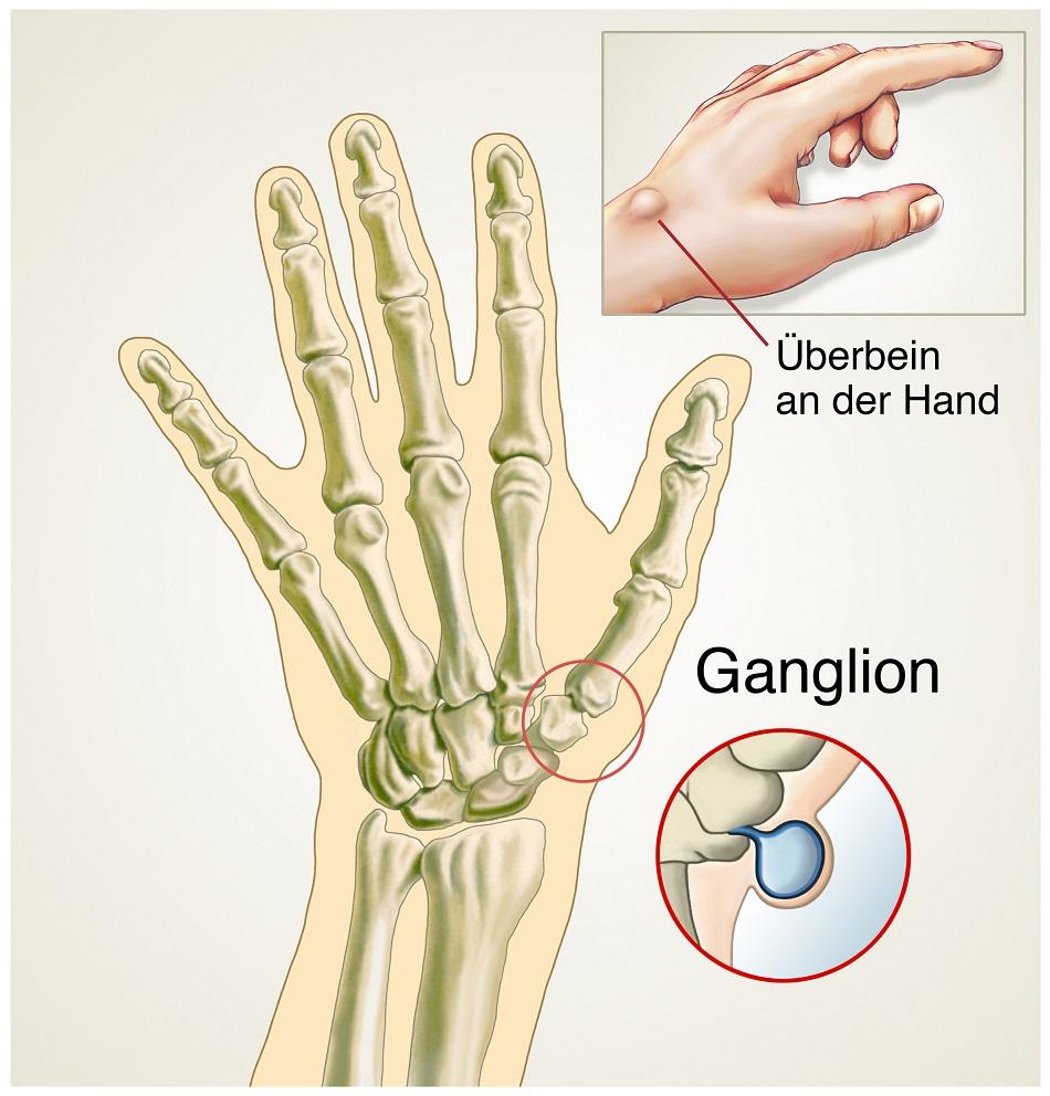 Ein Überbein an der Hand kann oft Schmerzen verursachen. Bild: Henrie - fotolia