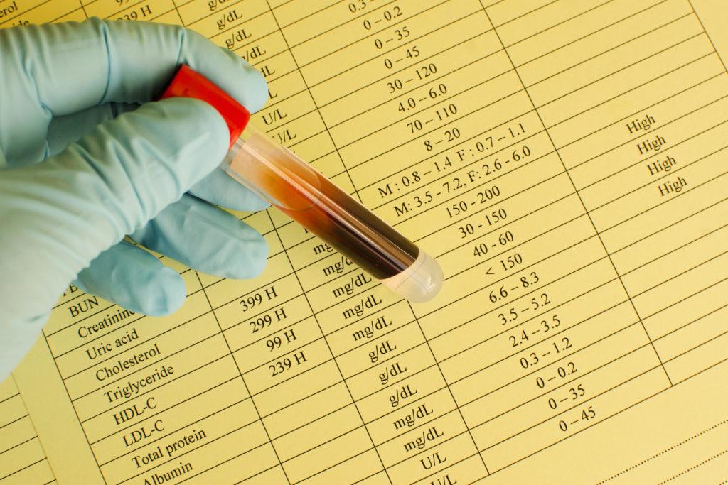 High lipid profile results