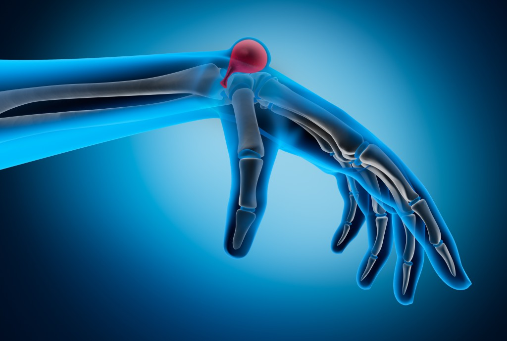 Ein Überbein bildet sich besonders häufig am Handgelenk, kann jedoch auch an anderen Körperstellen auftreten. (Bild: psdesign1/fotolia.com)