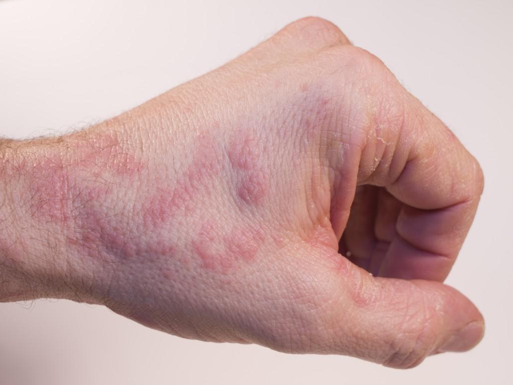 Rötungen, schuppige Haut und Juckreiz sind mögliche Hinweise auf ein Handekzem. (Bild: casi/fotolia.com)
