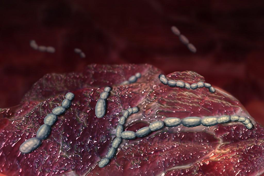 mandelentzündung hausmittel kinder