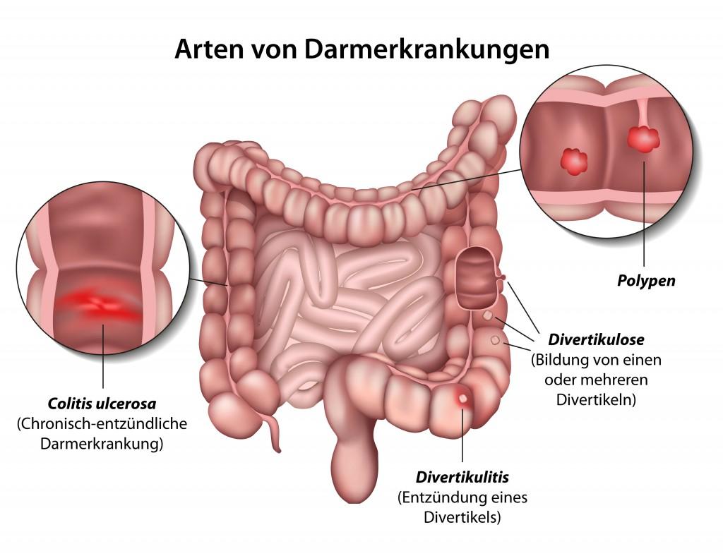 Verschiedene Darmerkrankungen in der anatomischen Ansicht. Bild: bilderzwerg - fotolia