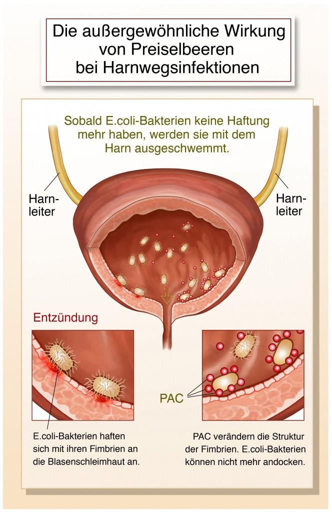 Die aussergewoehnliche Wirkung von Preiselbeeren (Cranberrys) bei Harnwegsinfektionen- Bild: Henrie - fotolia