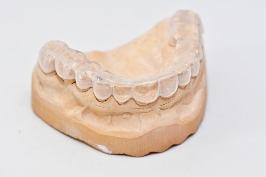 Was wirklich gegen Zähneknirschen hilft. Bild: Brigitte Meckle-fotolia