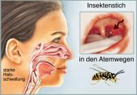Ein Stich in die Atemwege kann lebensgefährlich sein. Bild: Henrie - fotolia