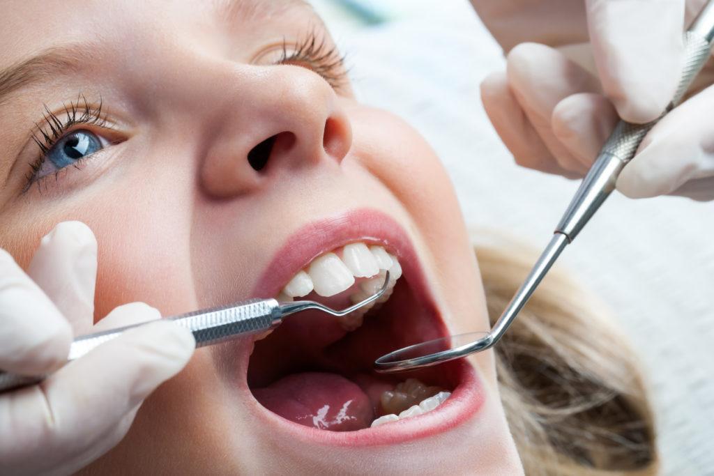 Eltern sollten die Zahnpflege ihrer Kinder mindestens bis Ende des Grundschulalters im Blick behalten. (Bild: karelnoppe/fotolia.com)