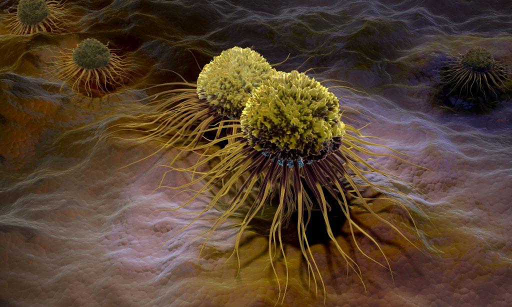 Durch eine Umprogrammierung der miRNA lässt sich die normale Zellfunktion wiederherstellen. (Bild: Alex/fotolia.com)