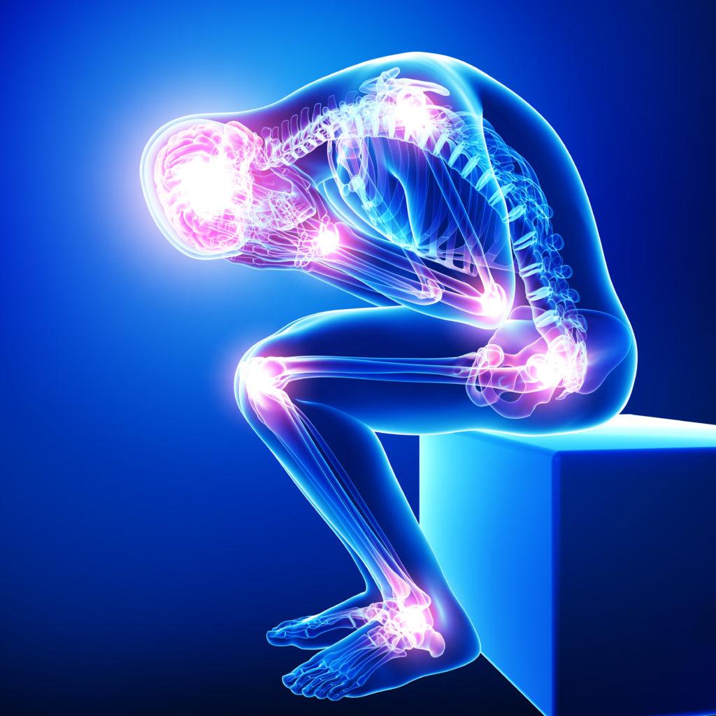 Entzündliches Rheuma erhöht das Herzinfarkt- und Schlaganfallrisiko. (Bild: pankajstock123/fotolia.com)