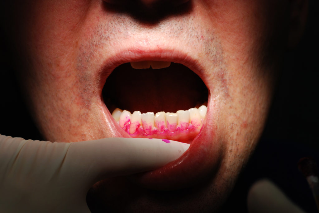 Zahnfleischbluten und Mundgeruch kann auf (Bild: Eric Fahrner/fotolia.com)