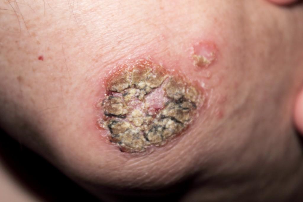 Oft sind die ersten Anzeichen von Hautkrebs eine schuppige Haut. (Bild: ArTo - fotolia)