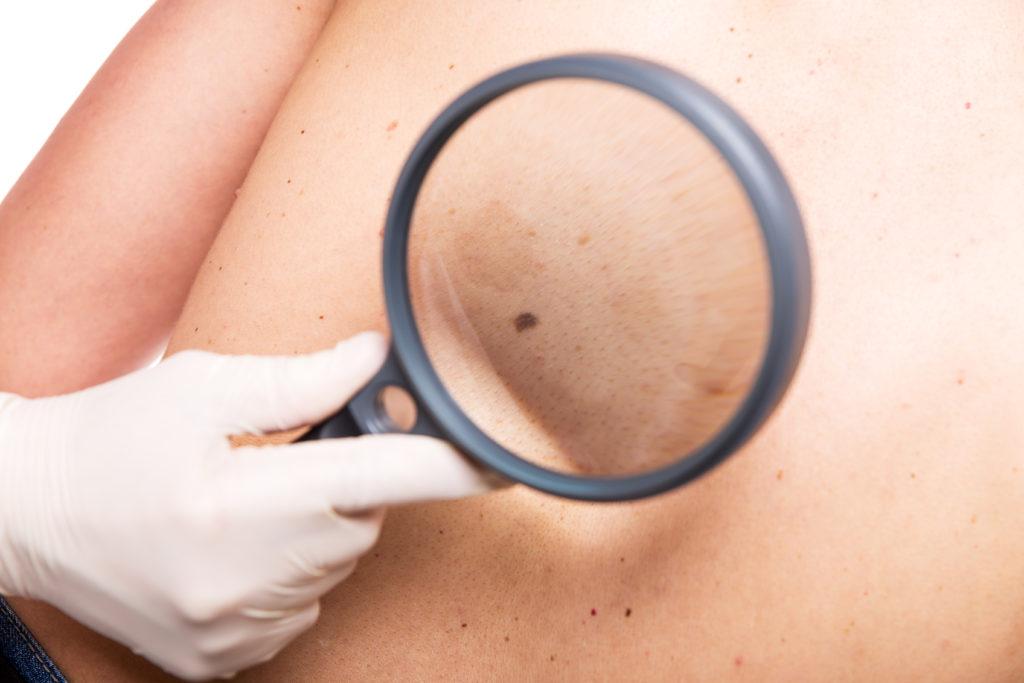 Hautkrebs wird oft nicht erkannt. Bild: Miriam Dörr - fotolia