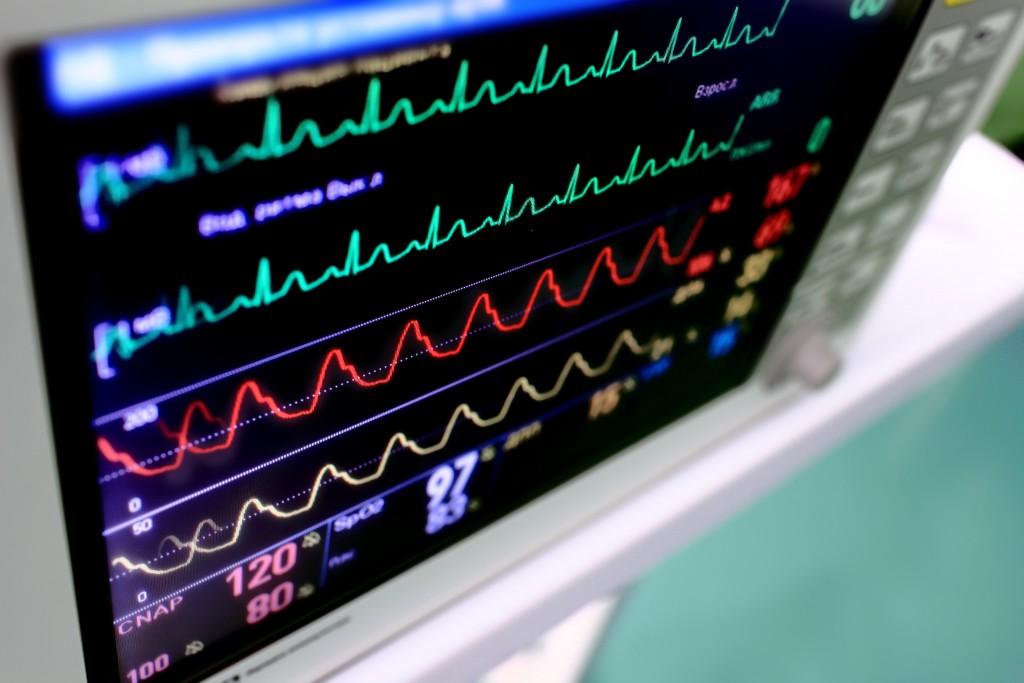 Gerät zur Kontrolle eines Herzschrittmachers
