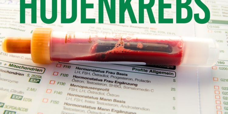 Bild einer Blutprobe mit Überschrift Hodenkrebs.