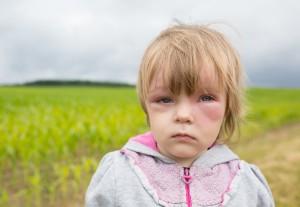 Bei einer Allergie entstehen massive Schwellungen. Da Lebensgefahr besteht, muss sofort ein Notarzt gerufen werden. Bild: vectorass - fotolia