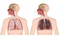 Schädigungen der Lunge durch Jahrelanges Rauchen. Bild:  bilderzwerg - fotolia