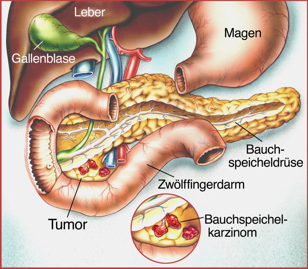 Bei Bauchspeicheldrüsenkrebs können die Heilungschancen durch eine individuelle Therapie deutlich verbessert werden. (Bild: Henrie/fotolia.com)