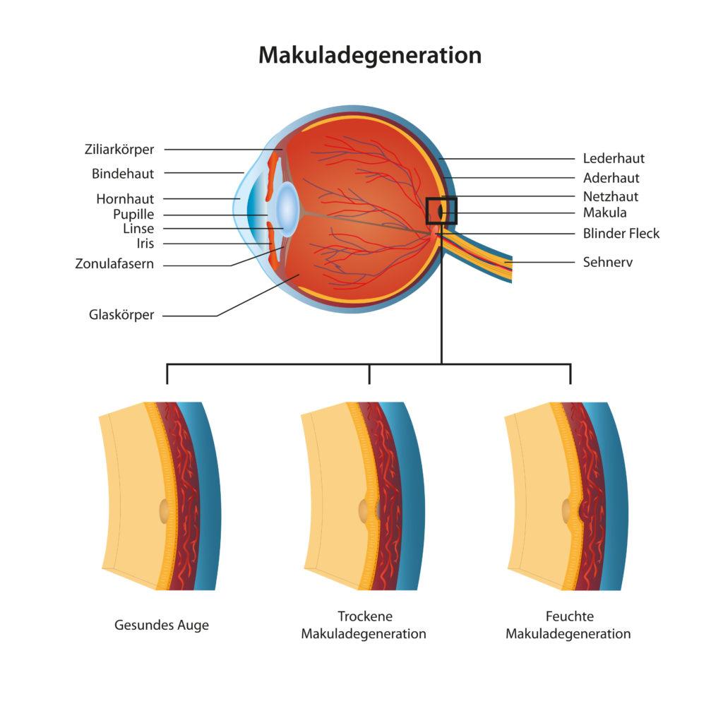 Altersbedingte Makuladegenration könnte in Zukunft heilbar sein. (Bild: bilderzwerg/fotolia.com)