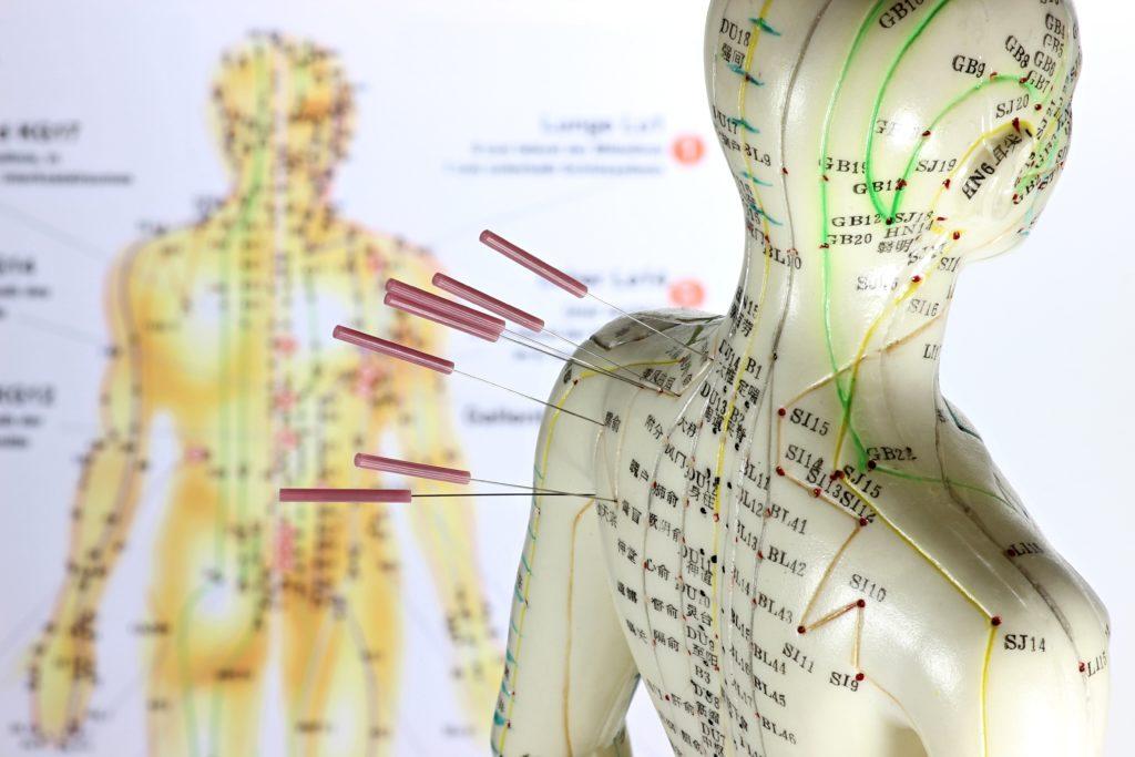 Elektro-Akupunktur kann den Blutdruck senken. Bild: B. Wylezich - fotolia