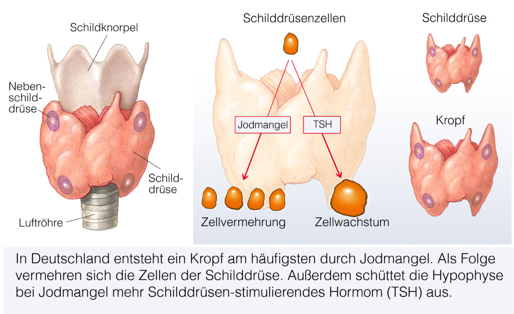 Folgen des allgemeinen Jodmangels. Bild: Henrie - fotolia