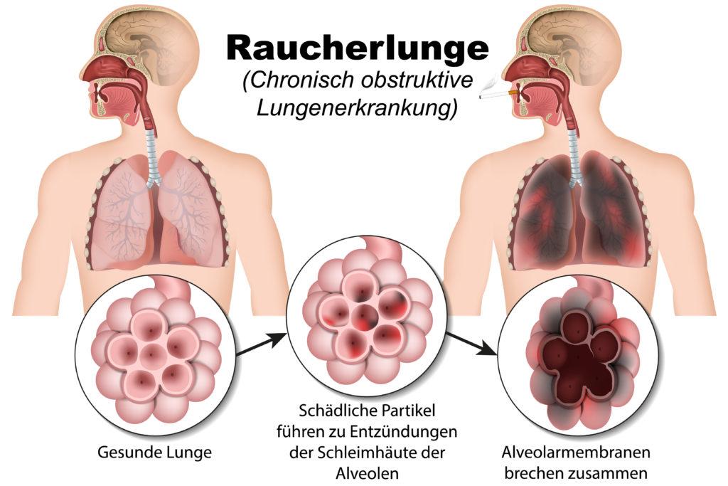 Ein Drittel der chronisch-obstruktiven Lungenkrankheiten betrifft Nichtraucher. (Bild: bilderzwerg/fotolia.com)