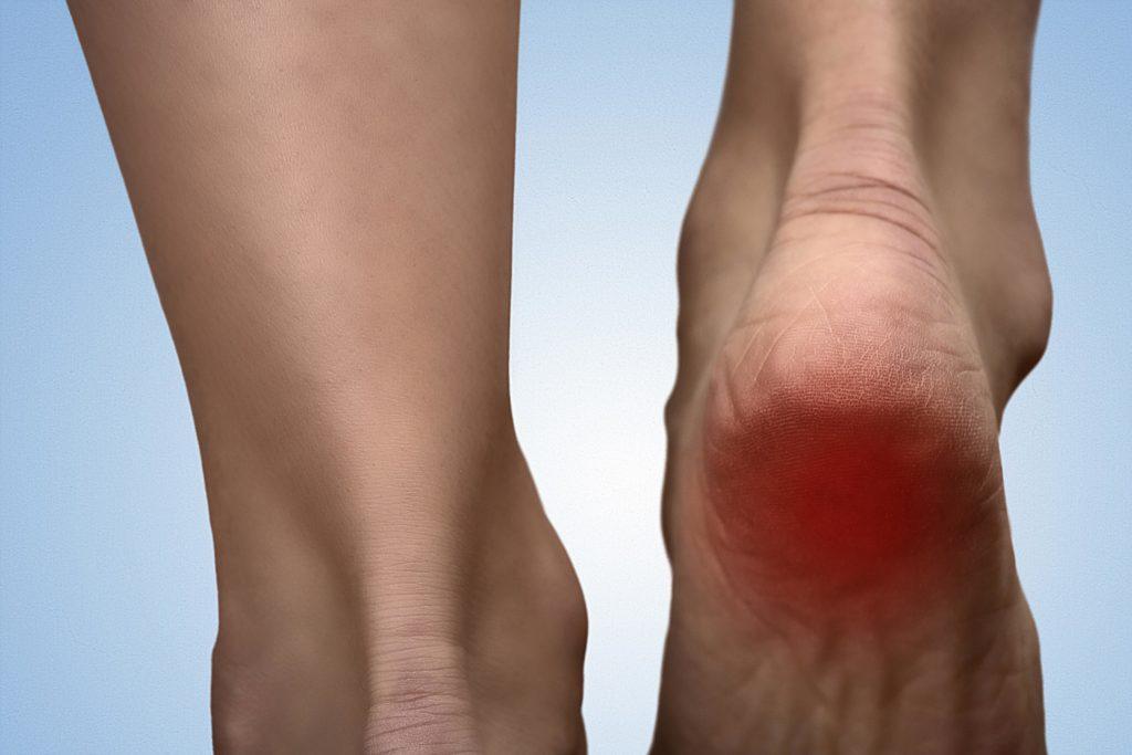 Auch die Hornhaut an den Füßen braucht Pflege. (Bild: pathdoc/fotolia.com)