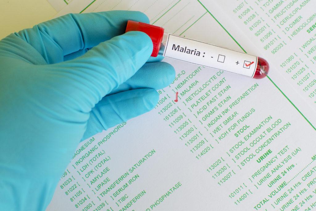 Der Medizin-Nobelpreis geht an drei Wissenschaftler für ihre Forschung an Malaria, Flussblindheit und Elefantiasis.