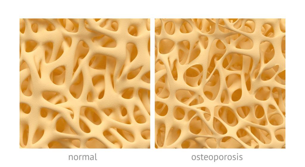 Bei Osteoporose ist die Knochdichte derart gering, dass leicht Frakturen auftreten können. (Bild: eranicle/fotolia.com)