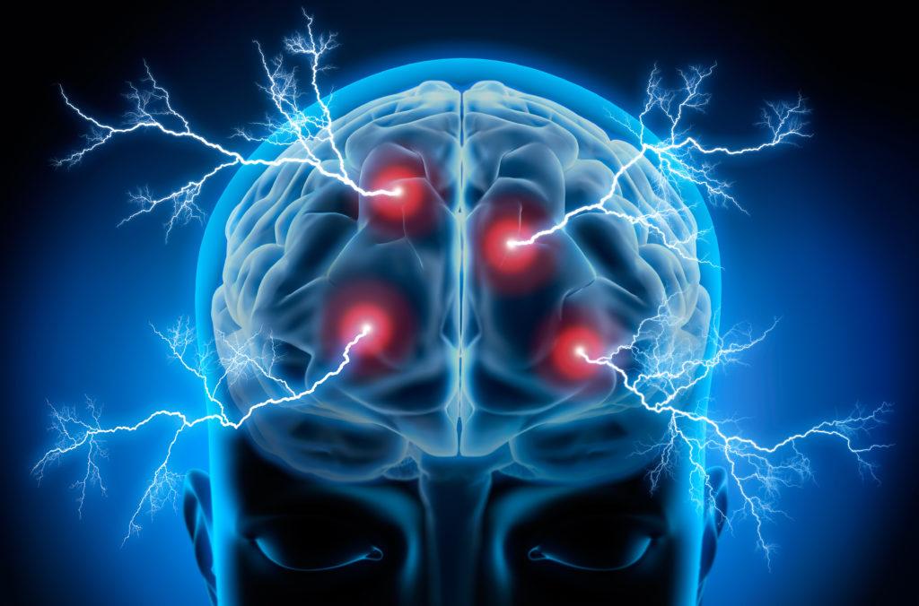 Entzündungen im Gehirn möglicher Auslöser für Schizophrenie und Psychosen. (Bild: psdesign1/fotolia.com)